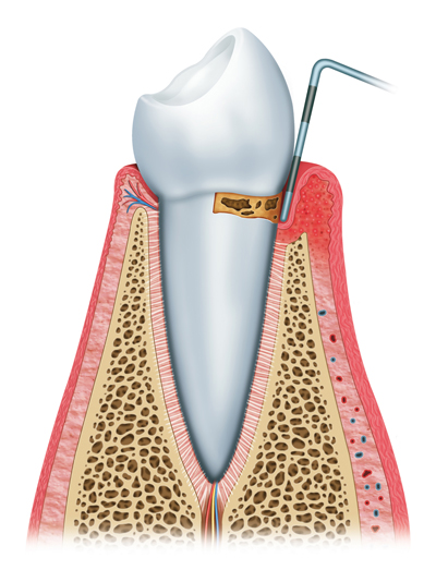 Stages of Gum Disease Worthington and Columbus, OH