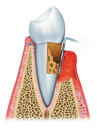 Stages of gum disease 4