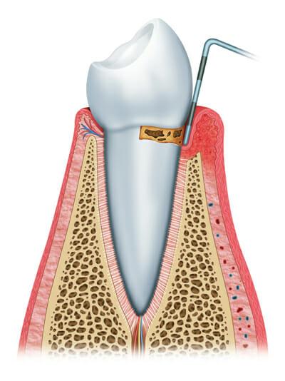 Stages of gum disease 2