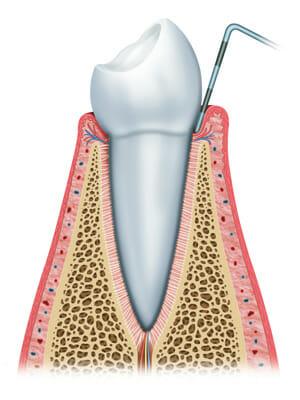 Stages of gum disease 1
