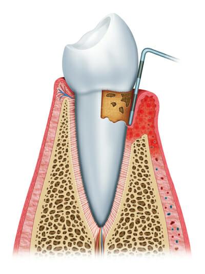 Stages of gum disease 3